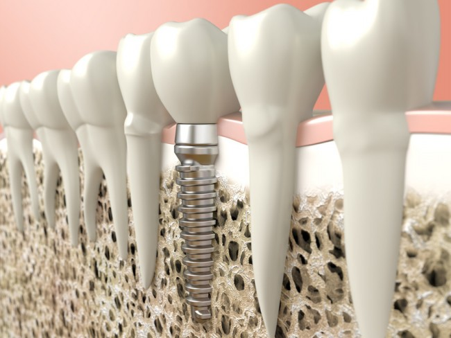 dentures and dental implant dentist gold coast