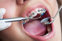 What to do When Your Braces Come Loose